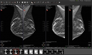 digital breast imaging tomosynthesis and digital subtraction mammography This article discusses recent developments in advanced derivative technologies associated with digital mammography digital breast tomosynthesis, its principles.