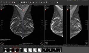 Visage 7 Enterprise Imaging Platform - Digital Breast Tomosynthesis
